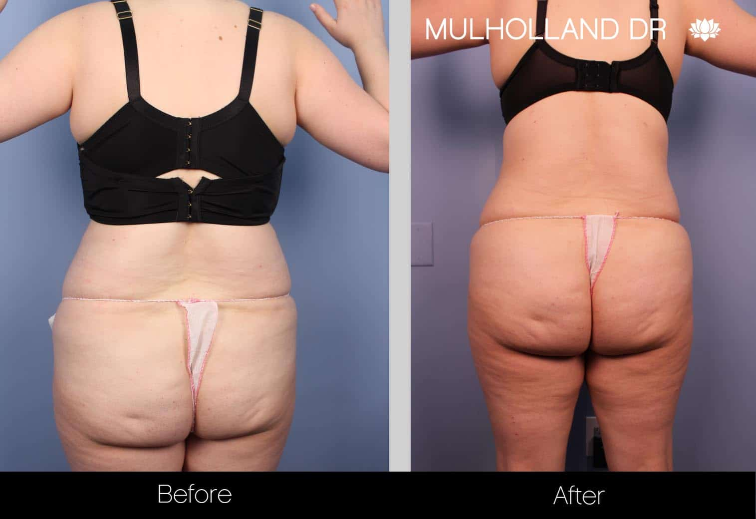 Tumescent Liposuction - Before and After Gallery – Photo 32