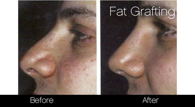 Facial Fat Transfer - Before and After Gallery – Photo 30