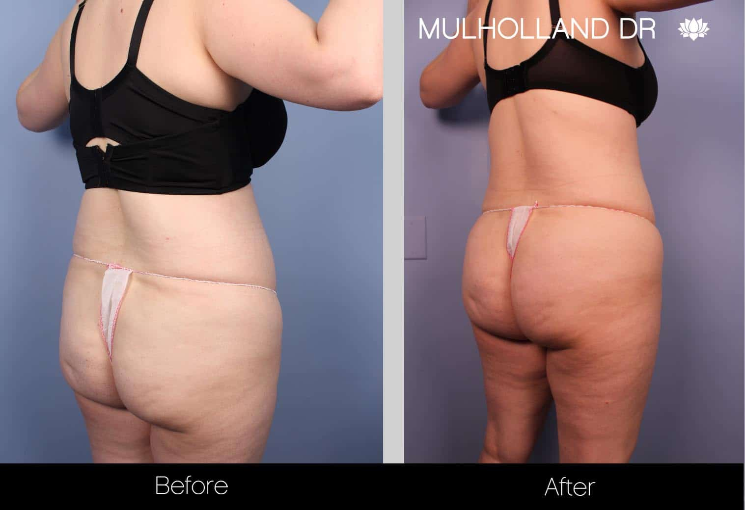 Tumescent Liposuction - Before and After Gallery – Photo 33