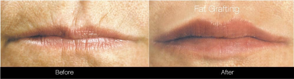 Facial Fat Transfer - Before and After Gallery – Photo 31