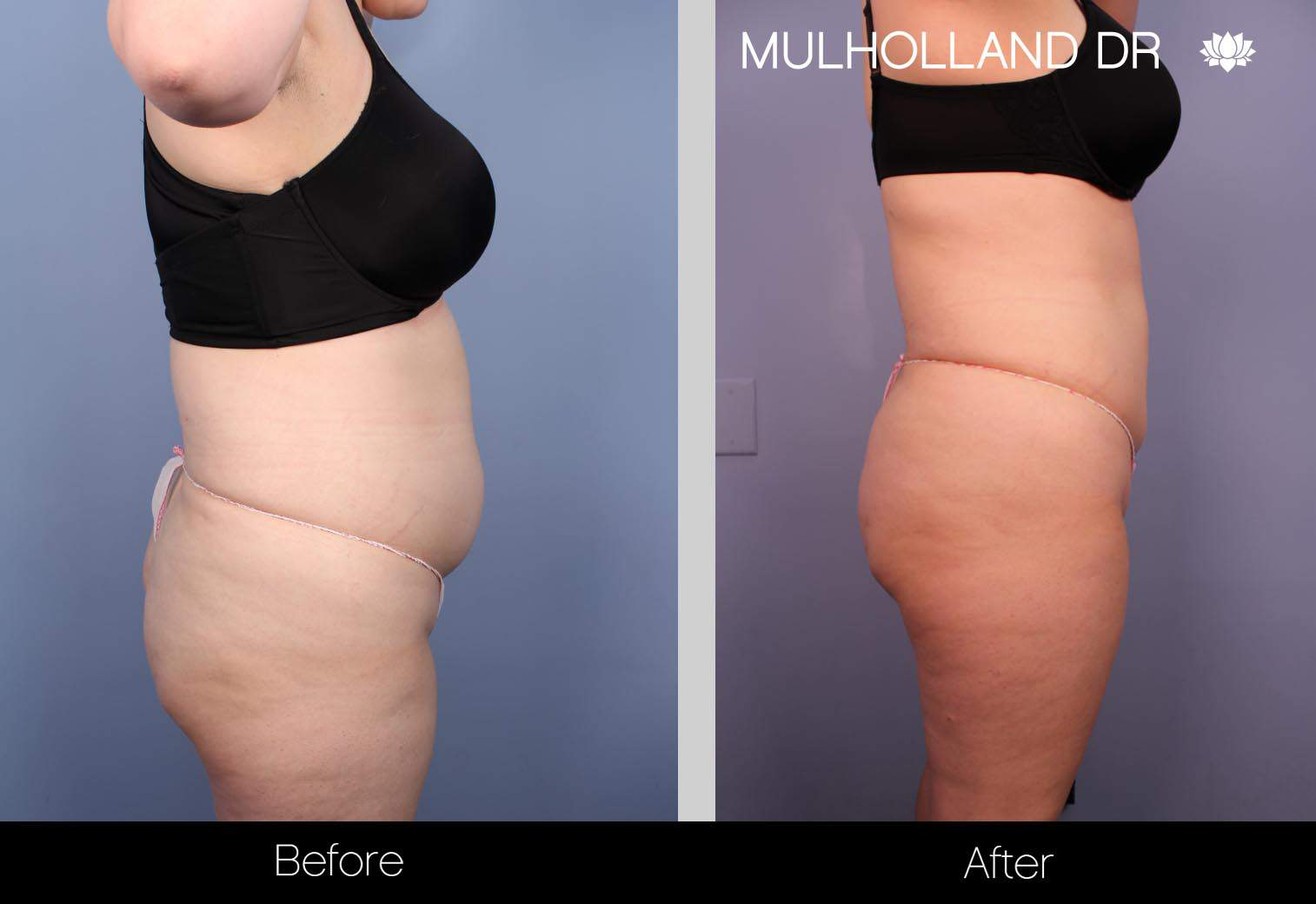 Tumescent Liposuction - Before and After Gallery – Photo 34
