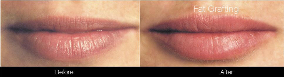 Facial Fat Transfer - Before and After Gallery – Photo 32