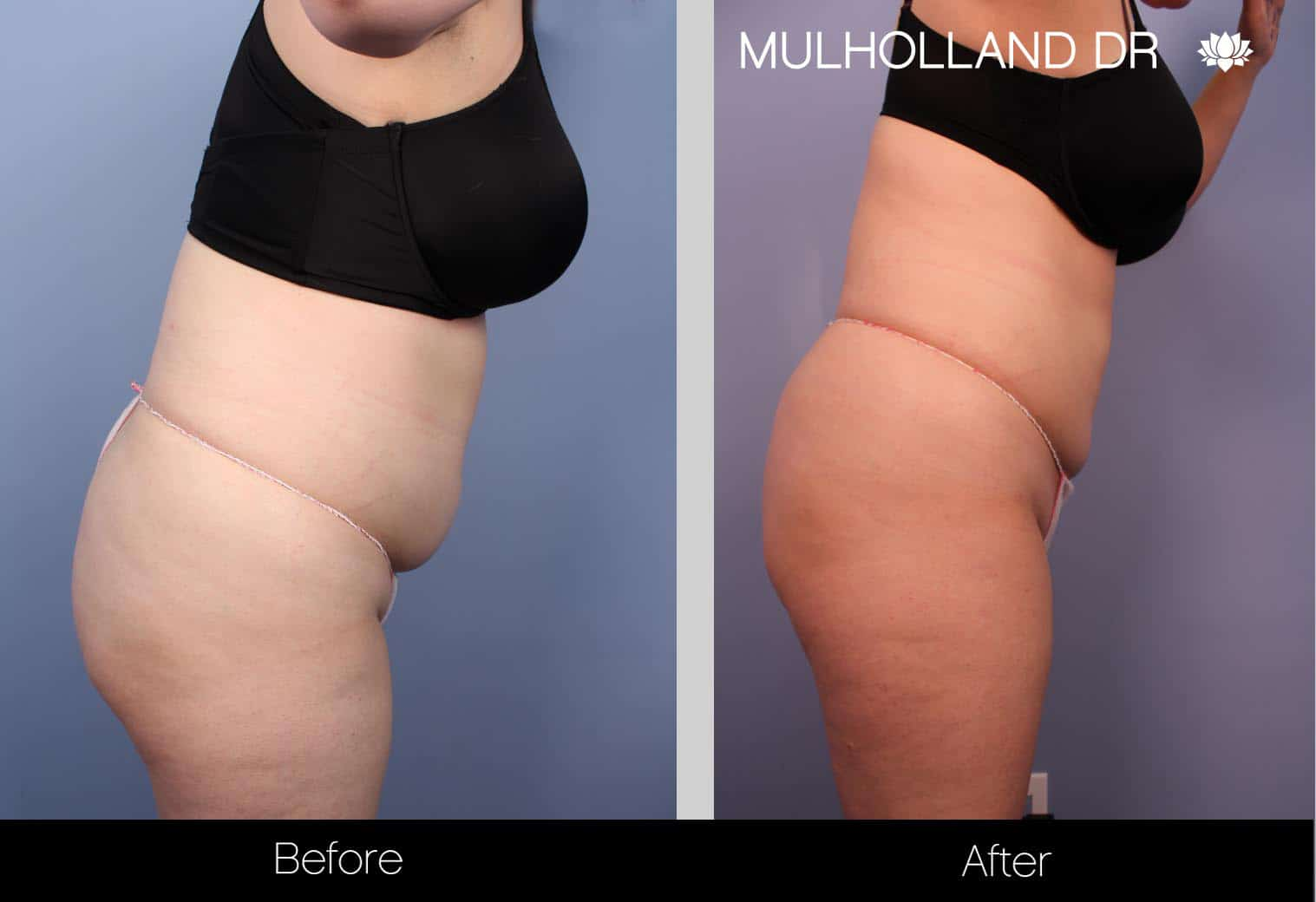 Tumescent Liposuction - Before and After Gallery – Photo 35