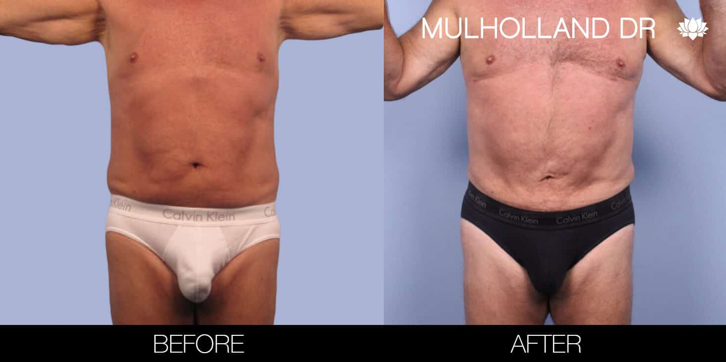 Male Tummy Tuck (Belt Lipectomy) - Before and After Gallery – Photo 36