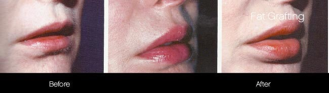 Facial Fat Transfer - Before and After Gallery – Photo 33