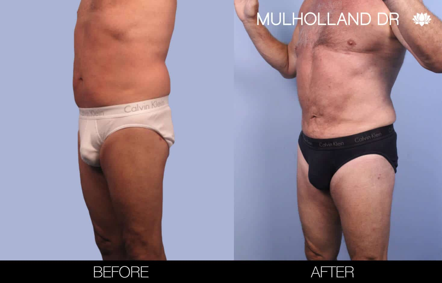 Male Tummy Tuck (Belt Lipectomy) - Before and After Gallery – Photo 37