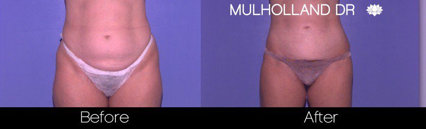 Tumescent Liposuction - Before and After Gallery – Photo 37