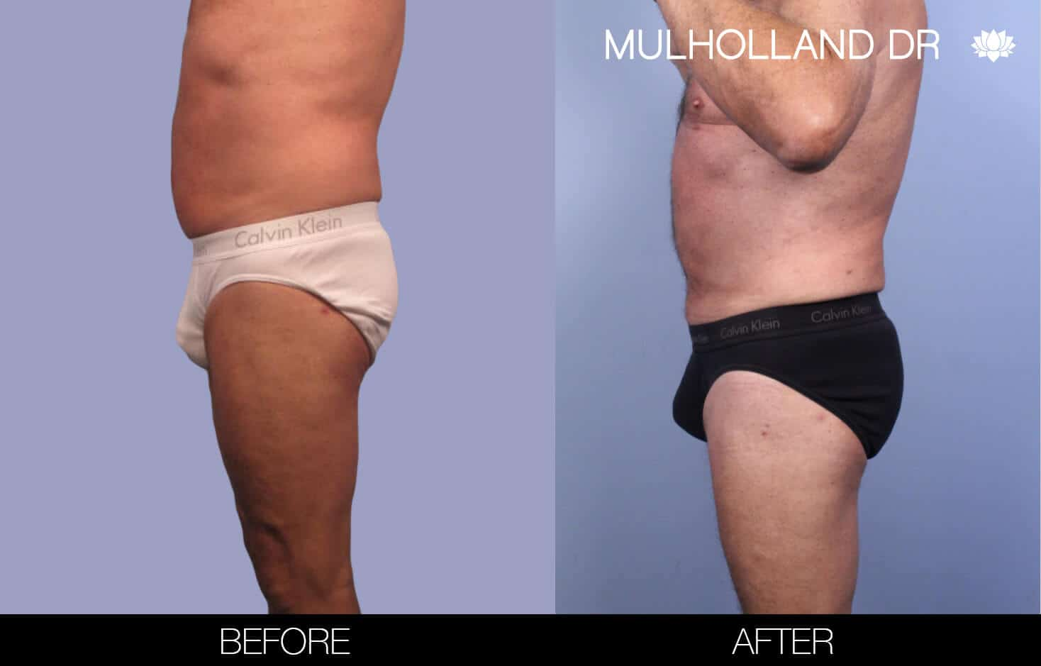 Male Tummy Tuck (Belt Lipectomy) - Before and After Gallery – Photo 38
