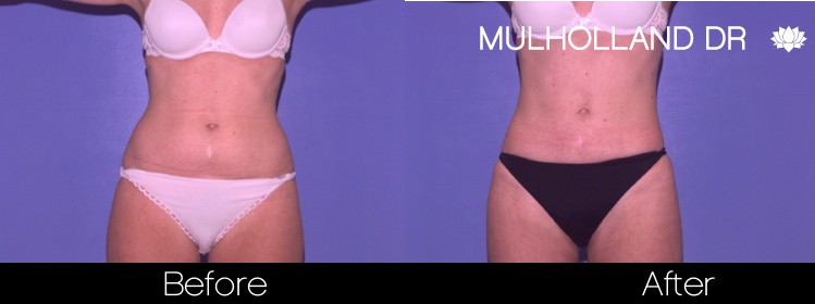 Tumescent Liposuction - Before and After Gallery – Photo 38