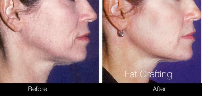 Facial Fat Transfer - Before and After Gallery – Photo 35