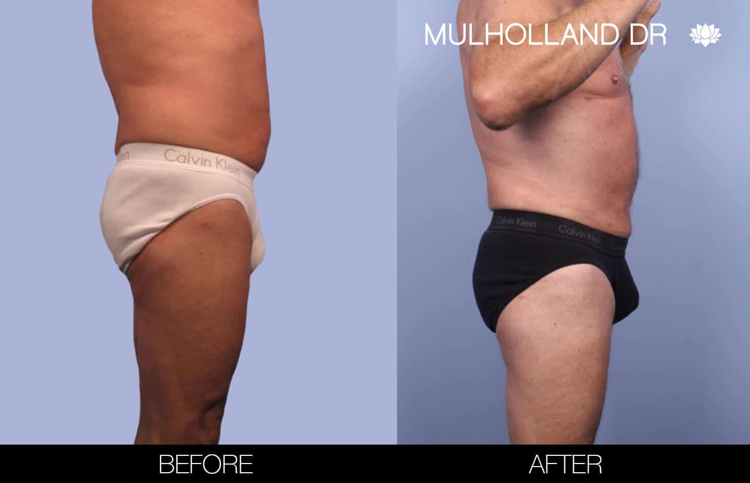 Male Tummy Tuck (Belt Lipectomy) - Before and After Gallery – Photo 39