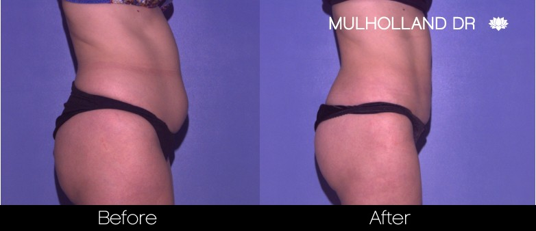 Tumescent Liposuction - Before and After Gallery – Photo 42