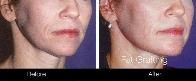 Facial Fat Transfer - Before and After Gallery – Photo 36
