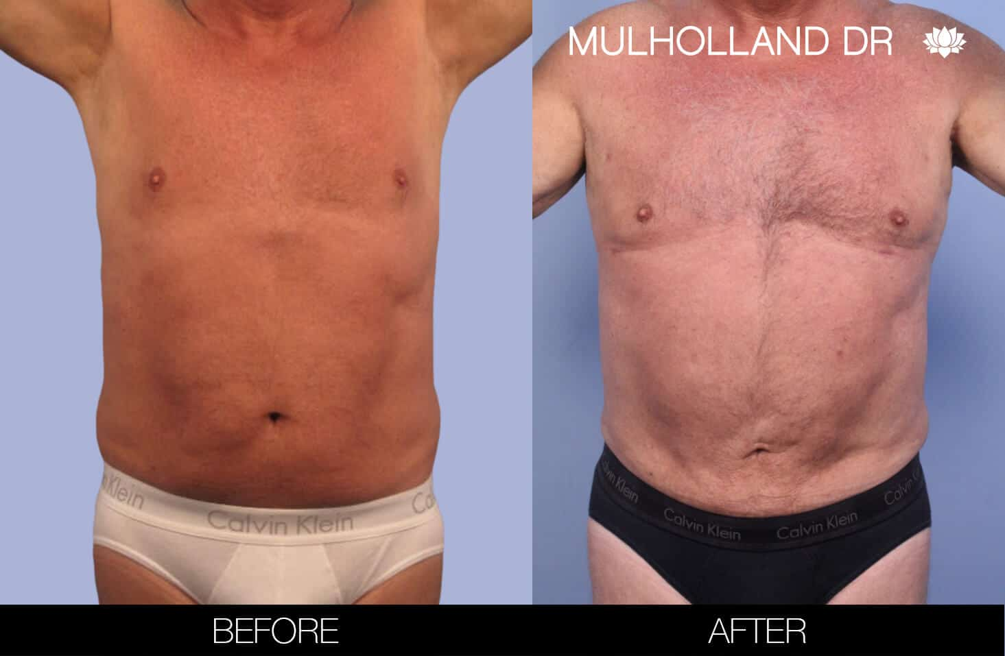 Male Tummy Tuck (Belt Lipectomy) - Before and After Gallery – Photo 40