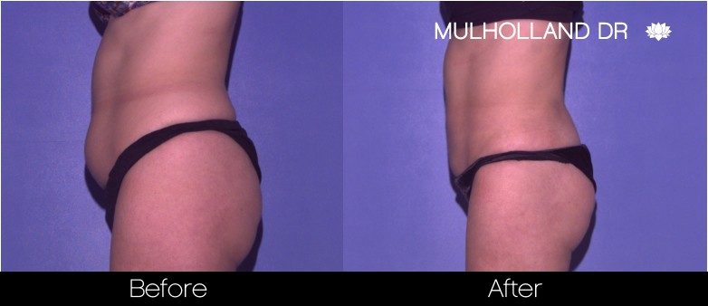 Tumescent Liposuction - Before and After Gallery – Photo 43