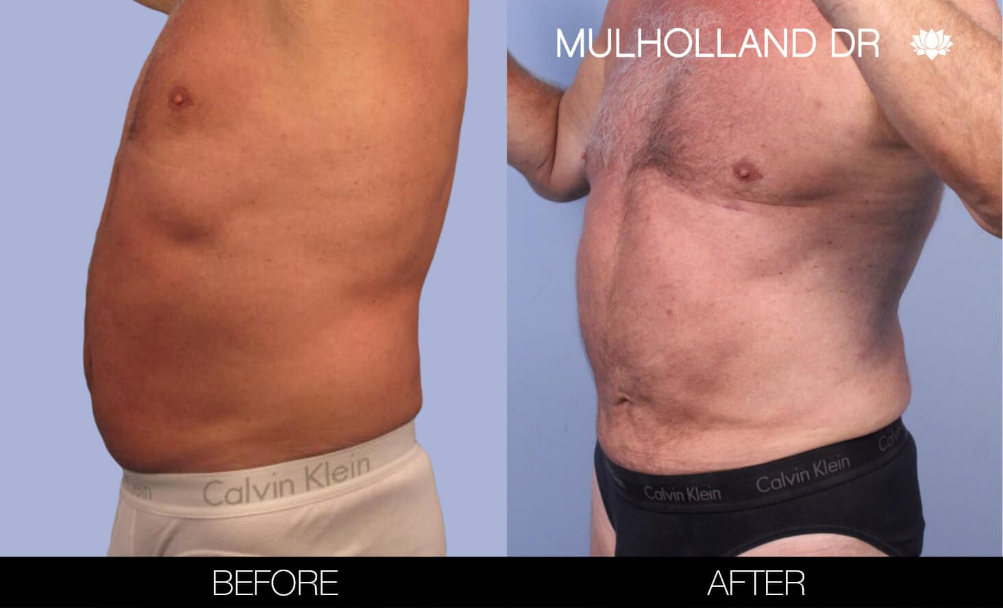Male Tummy Tuck (Belt Lipectomy) - Before and After Gallery – Photo 41