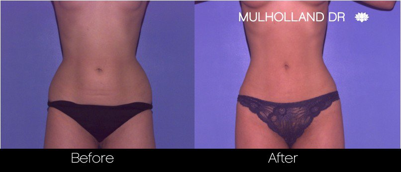 Tumescent Liposuction - Before and After Gallery – Photo 44