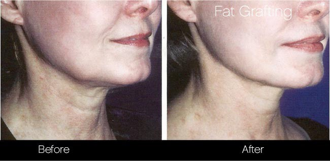Facial Fat Transfer - Before and After Gallery – Photo 38