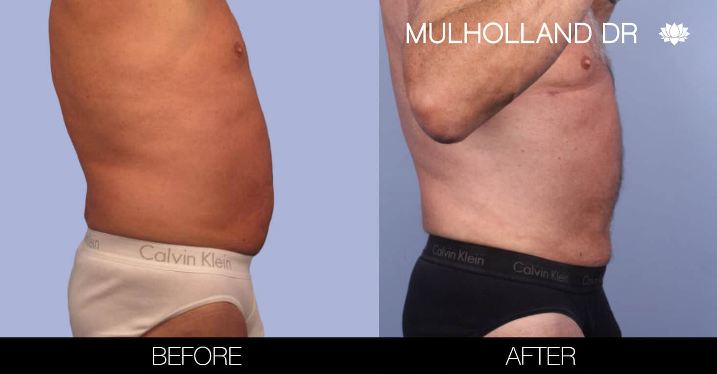 Male Tummy Tuck (Belt Lipectomy) - Before and After Gallery – Photo 42