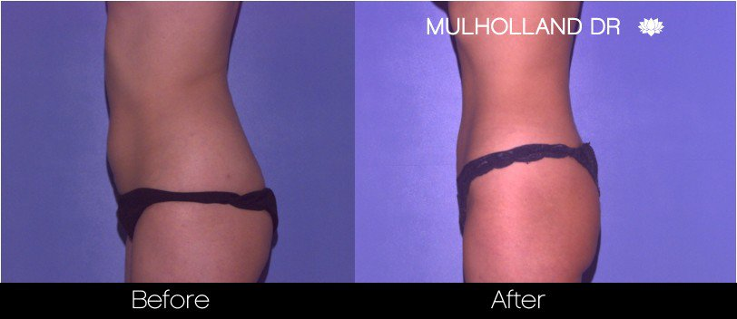 Tumescent Liposuction - Before and After Gallery – Photo 45