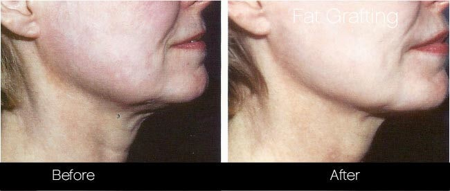 Facial Fat Transfer - Before and After Gallery – Photo 39
