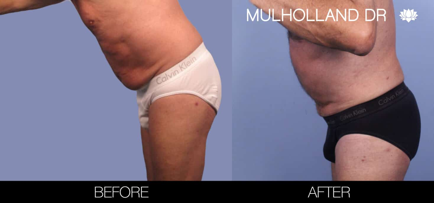 Male Tummy Tuck (Belt Lipectomy) - Before and After Gallery – Photo 43