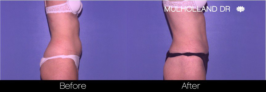 Tumescent Liposuction - Before and After Gallery – Photo 39