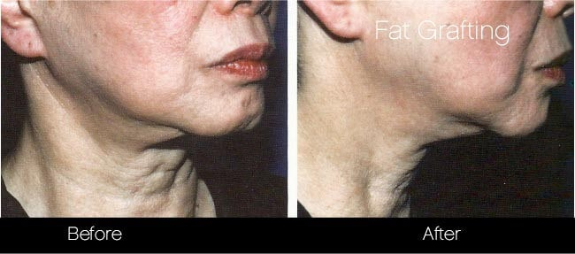 Facial Fat Transfer - Before and After Gallery – Photo 40