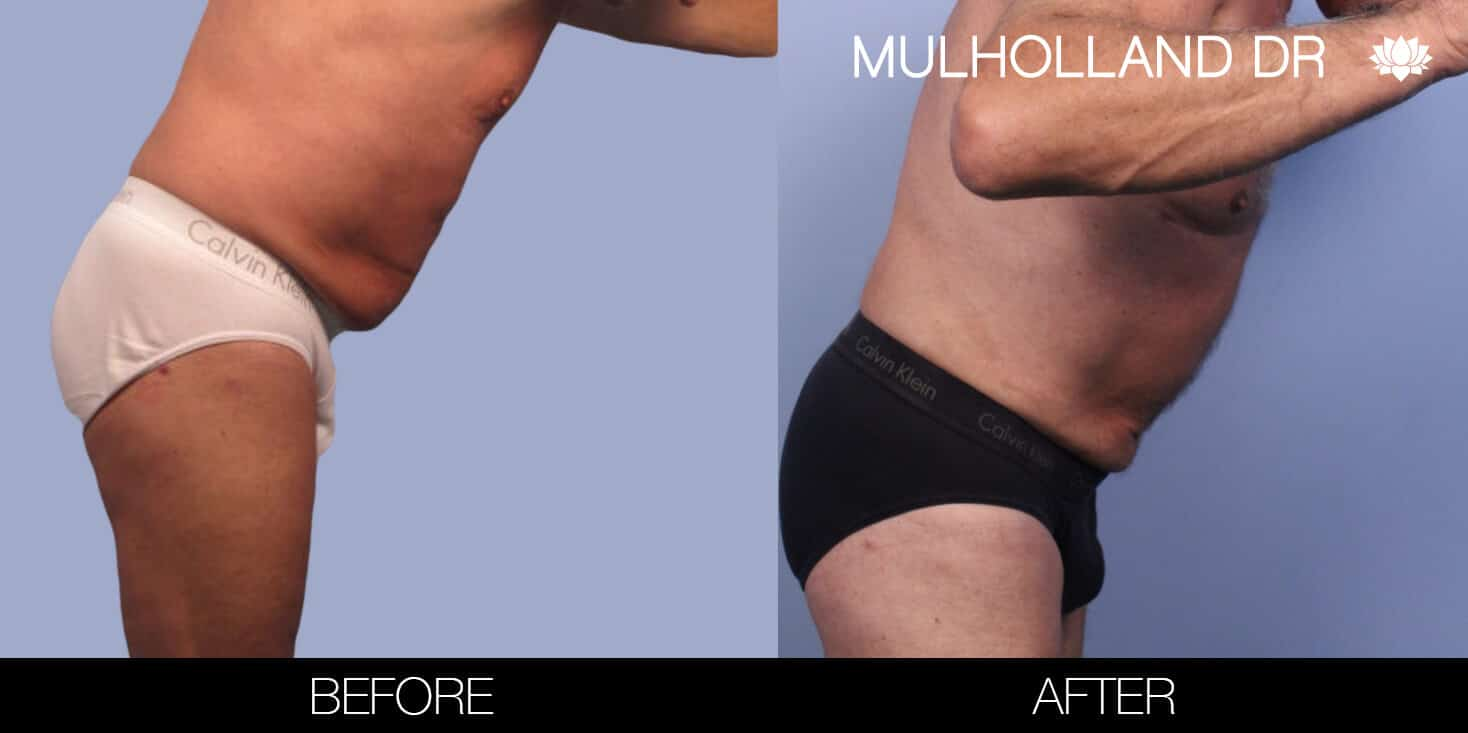 Male Tummy Tuck (Belt Lipectomy) - Before and After Gallery – Photo 44