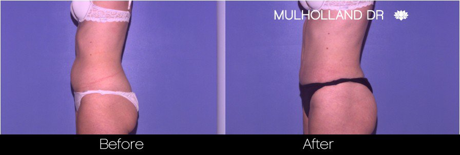Tumescent Liposuction - Before and After Gallery – Photo 40