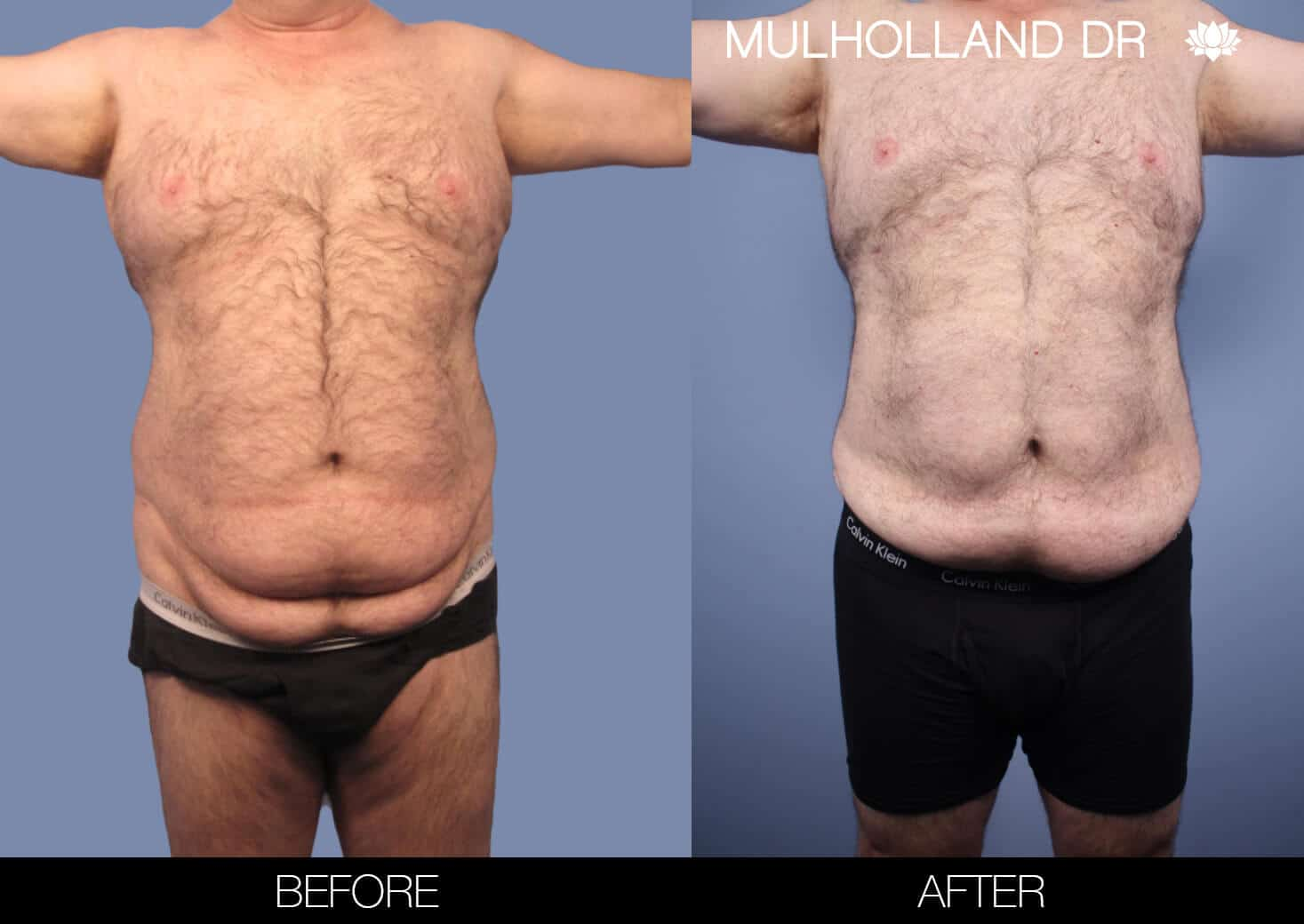 Male Tummy Tuck (Belt Lipectomy) - Before and After Gallery – Photo 45