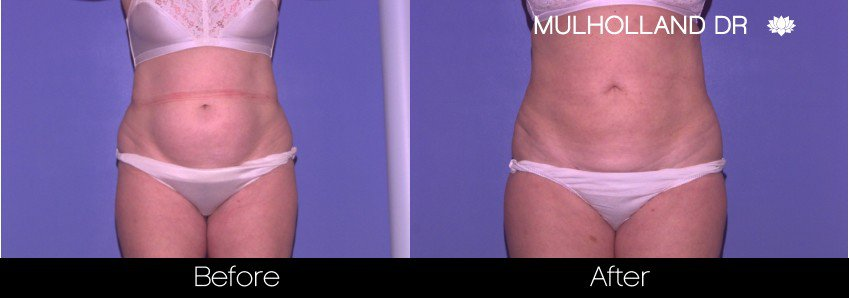 Tumescent Liposuction - Before and After Gallery – Photo 46