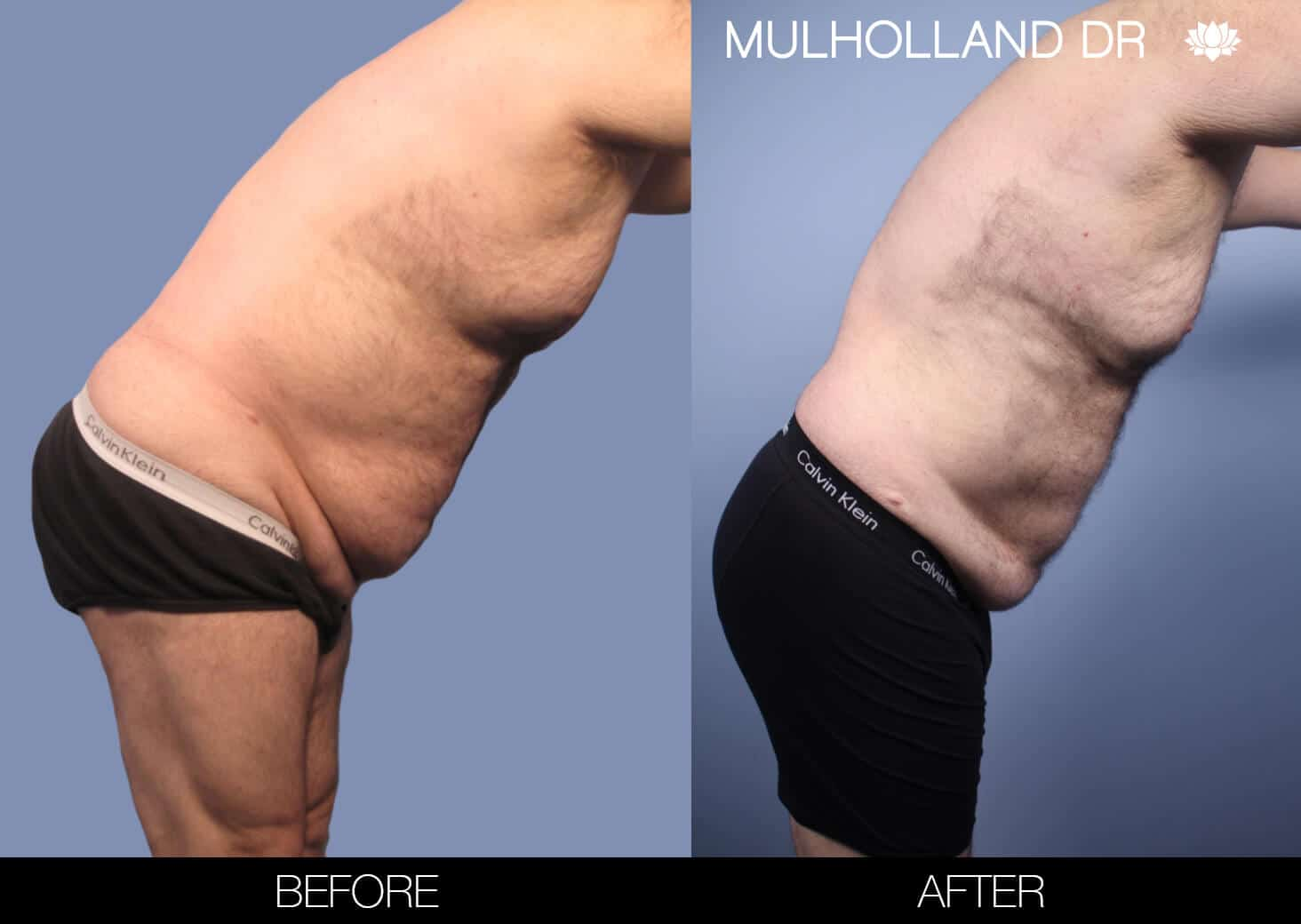 Male Tummy Tuck (Belt Lipectomy) - Before and After Gallery – Photo 46