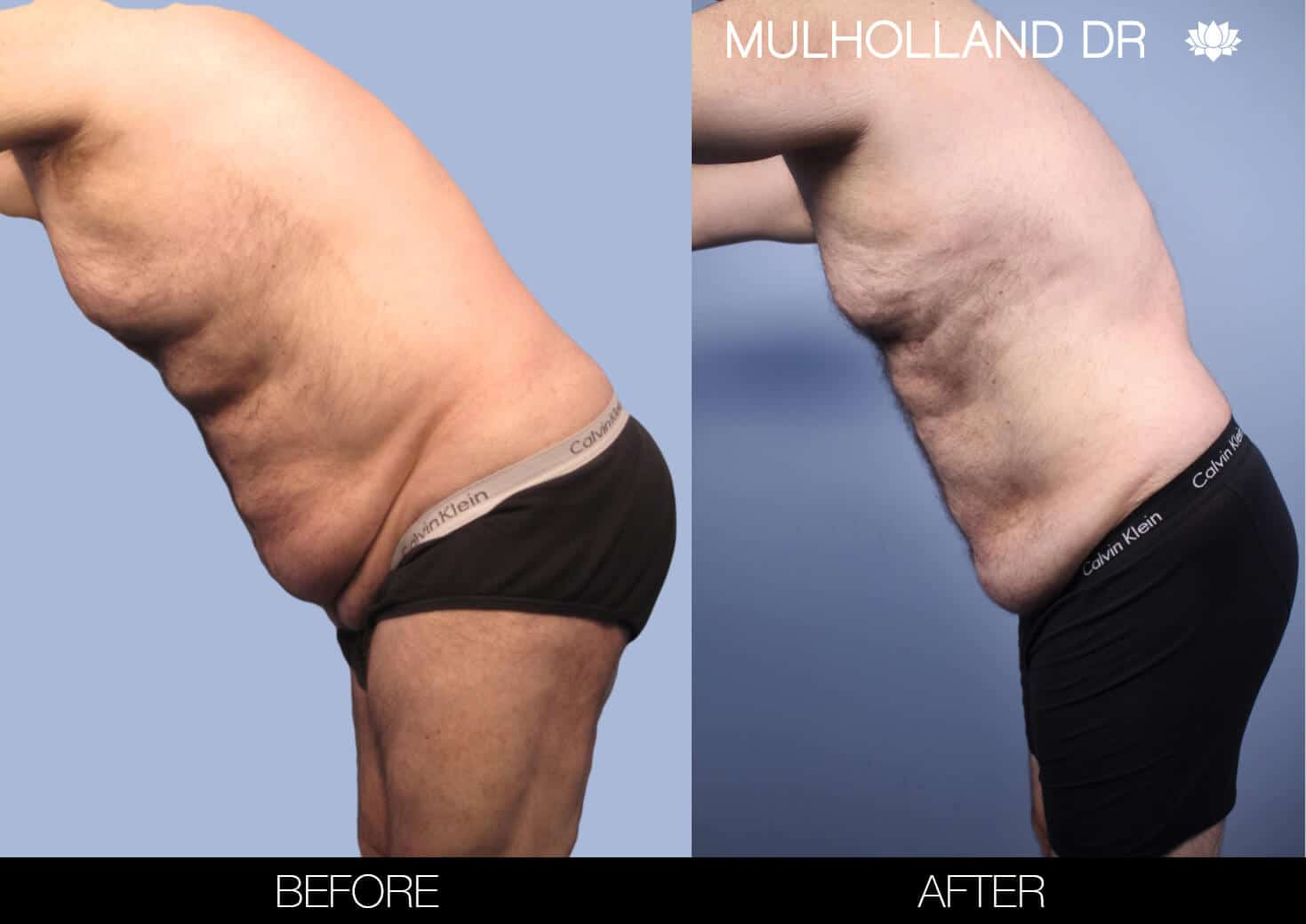 Male Tummy Tuck (Belt Lipectomy) - Before and After Gallery – Photo 47