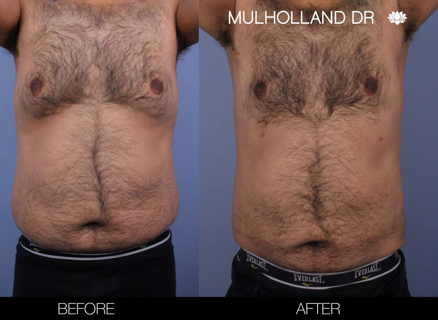 Male Tummy Tuck (Belt Lipectomy) - Before and After Gallery – Photo 48
