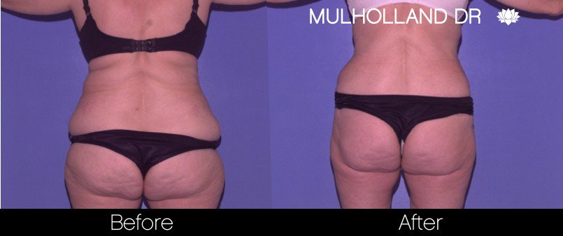 Tumescent Liposuction - Before and After Gallery – Photo 49