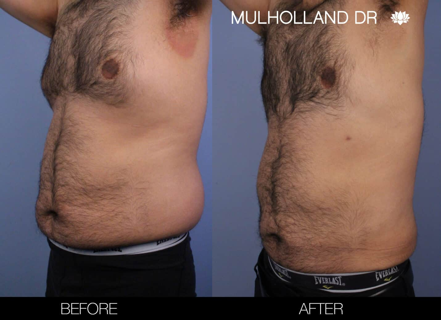 Male Tummy Tuck (Belt Lipectomy) - Before and After Gallery – Photo 49