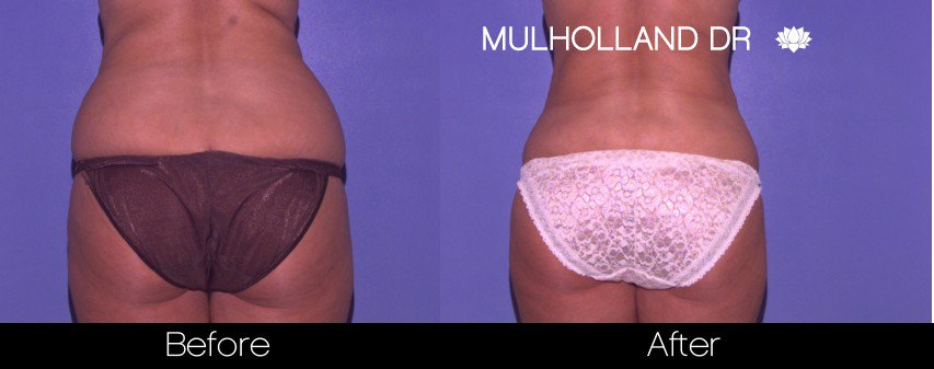 Tumescent Liposuction - Before and After Gallery – Photo 50