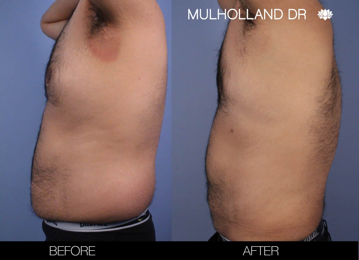 Male Tummy Tuck (Belt Lipectomy) - Before and After Gallery – Photo 50