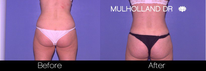 Tumescent Liposuction - Before and After Gallery – Photo 41