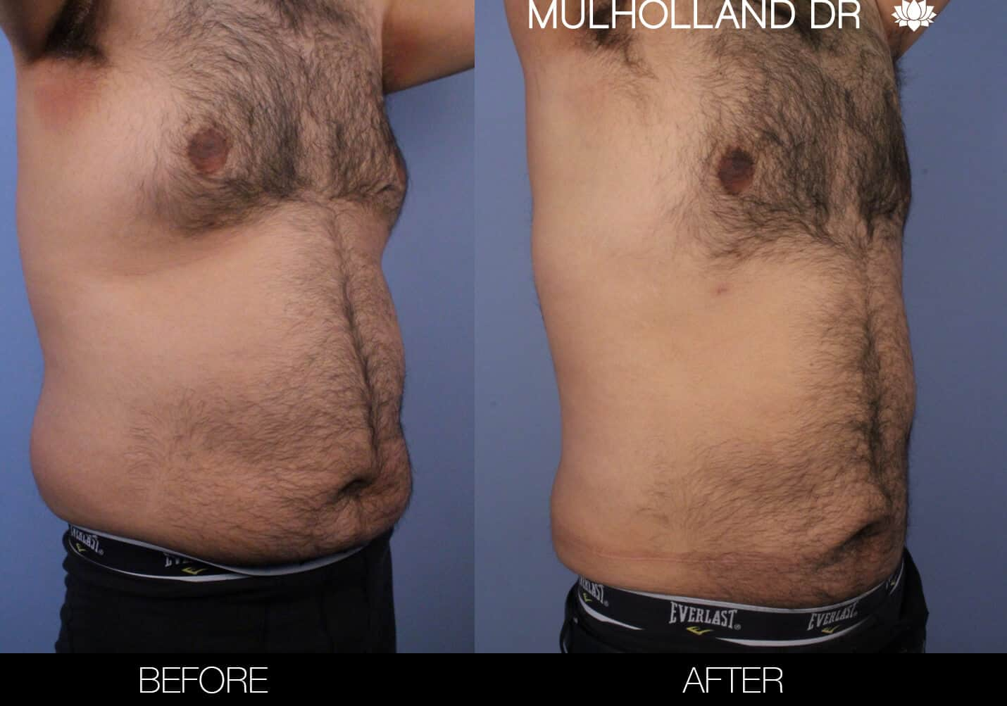 Male Tummy Tuck (Belt Lipectomy) - Before and After Gallery – Photo 51