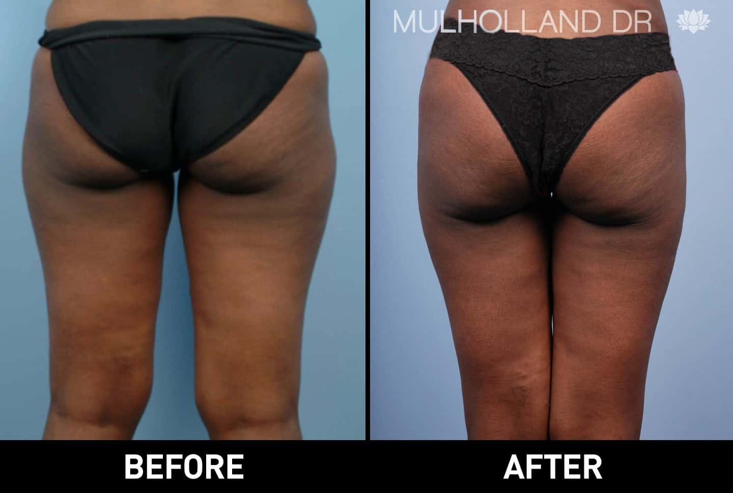 Tumescent Liposuction - Before and After Gallery – Photo 13