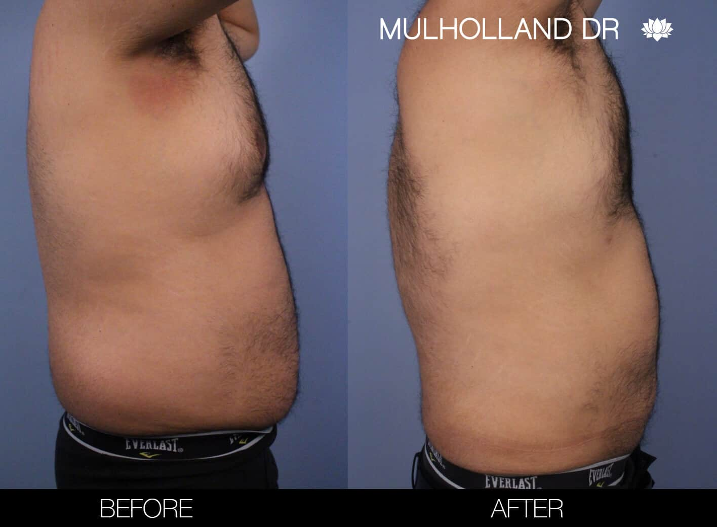 Male Tummy Tuck (Belt Lipectomy) - Before and After Gallery – Photo 52