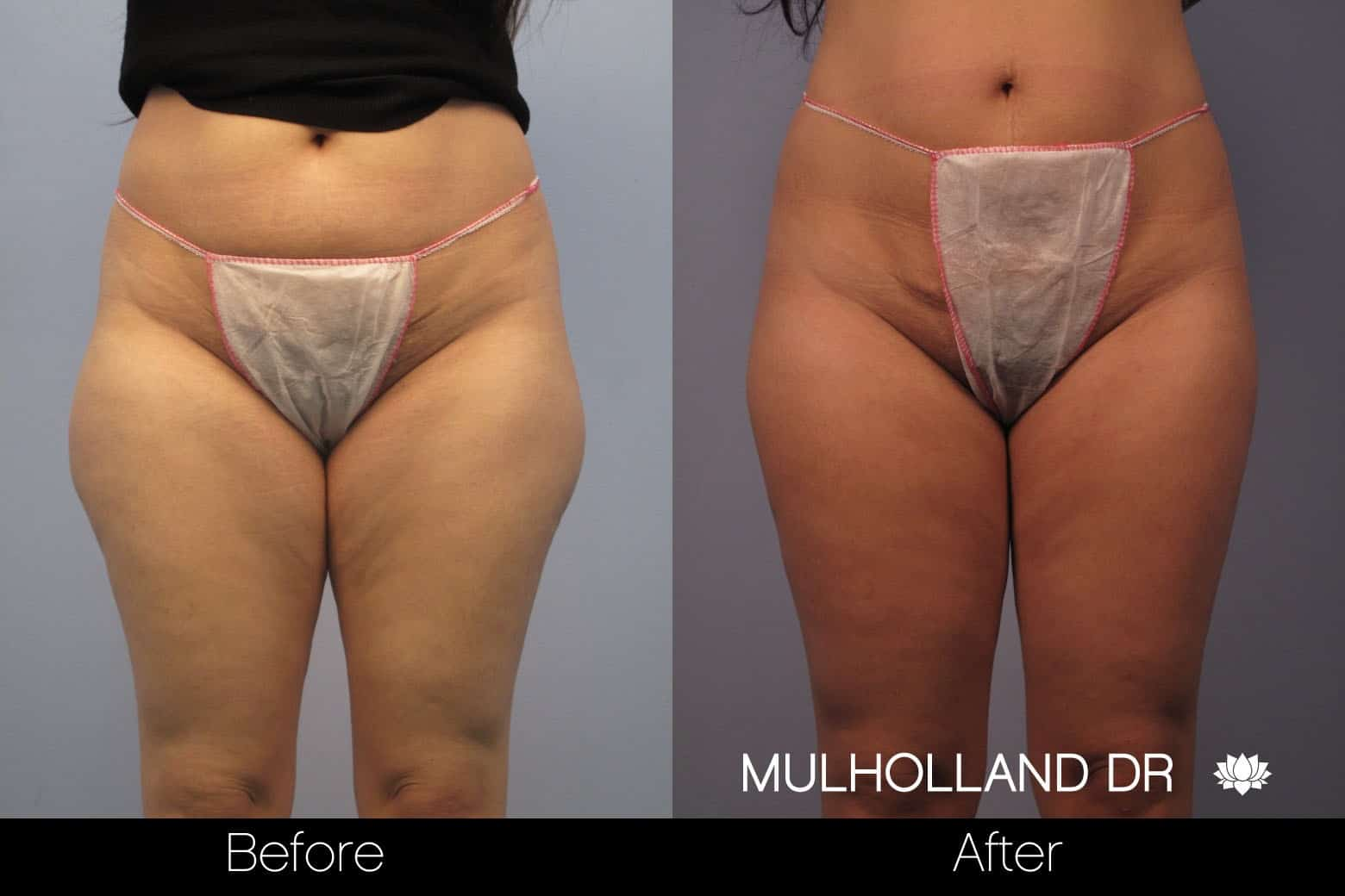 Tumescent Liposuction - Before and After Gallery – Photo 51