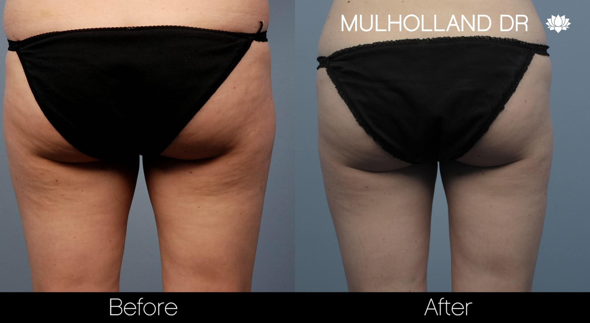 Tumescent Liposuction - Before and After Gallery – Photo 54