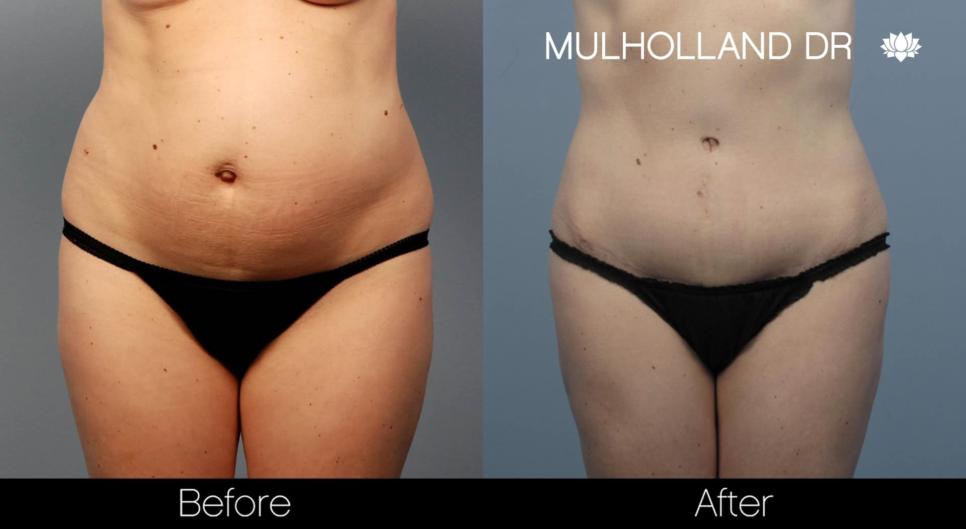 Tumescent Liposuction - Before and After Gallery – Photo 55