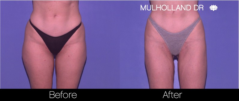 Tumescent Liposuction - Before and After Gallery – Photo 56