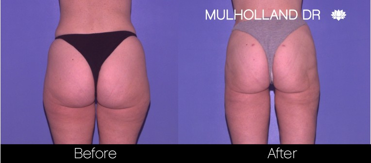 Tumescent Liposuction - Before and After Gallery – Photo 57