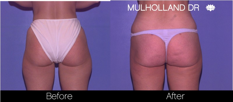 Tumescent Liposuction - Before and After Gallery – Photo 58