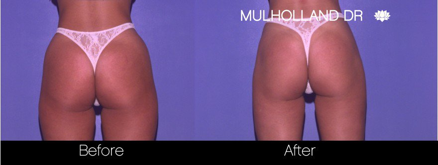 Tumescent Liposuction - Before and After Gallery – Photo 59